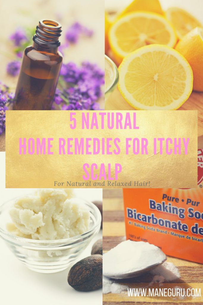 25+ best ideas about Itchy scalp remedy on Pinterest | Dry ...