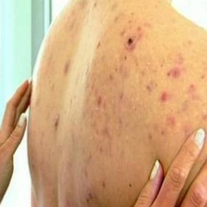 Home Remedies For Back Acne - Natural Treatments & Cure For Back Acne | Find Home Remedy