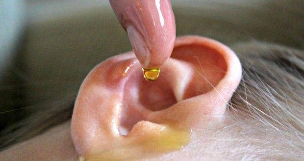 ce-remede-maison-permet-de-traiter-les-bouchons-de-cire-et-les-infections-des-oreilles