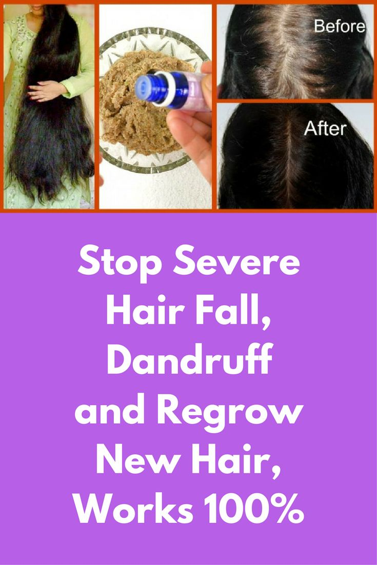 how to use amla for hair fall