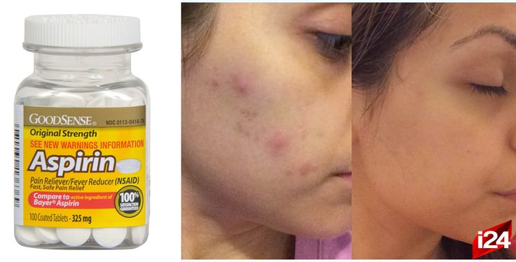 Elimina el acné rápidamente con ayuda de la aspirina ¡Es muy fácil!