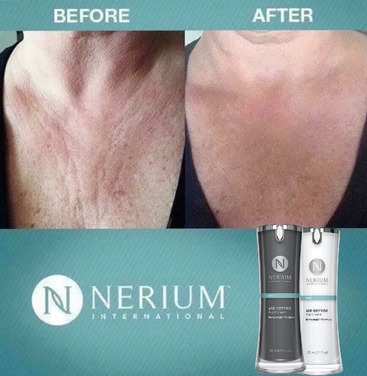 Do you have #sundamage? Creases on your chest? Crepe skin? Nerium AD will rid you of all of this and more. TRY IT for 30 days risk free!!! #Nerium #skincare $90