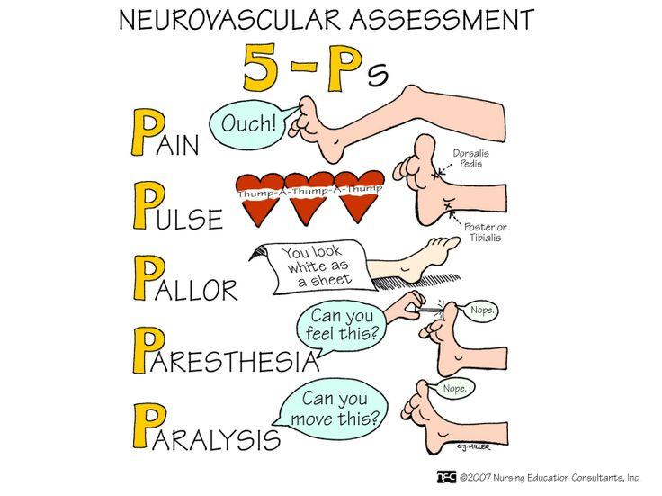 Neurovascular+Assessment.jpg 1,600×1,199 pixels