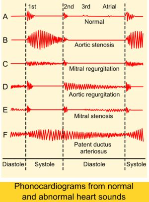 Phonocardiograms. #cardiology See: pinterest.com/pin/287386019943731955