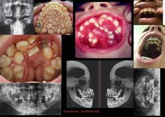 iwannabeadoctornow:  Hyperdontia… Makes me shiver for some reason haha.   Soo creepy.