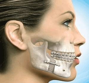 What is a bone graft? Read more at http://www.gonaturaldentistry.com/bone-graft/ #bonegrafting #dentistry