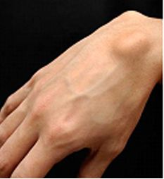 """Ganglion Cyst - Found this very helpful when I was trying to figure out why my wrist hurts, and is very sensitive to pressure. Like when I try to do a push up, or push my self to stand up from sitting down. If you think you have a lump on the top of your hand/wrist this """"could"""" be one explaination."""