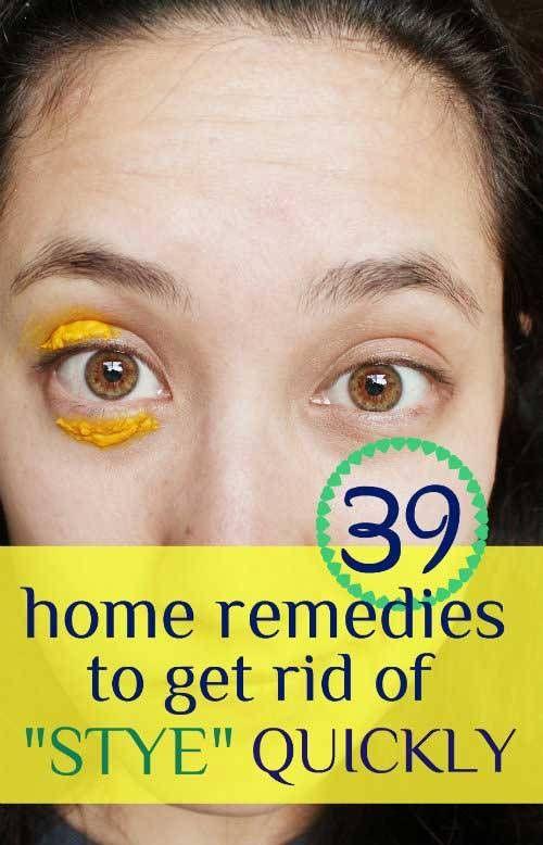 39 Proven Home Remedies to Get Rid of Stye https://www.homeremedyhacks.com/39-proven-home-remedies-get-rid-stye #GetRidOfStye #Stye