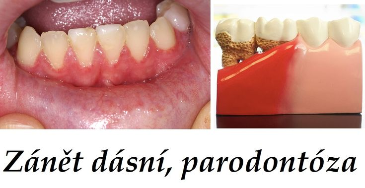 dasne zanet dasni parodontoza byliny bylinky babske rady ustni voda zubni olej