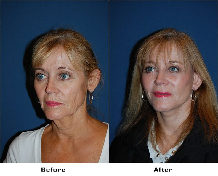Procedures Performed: Endoscopic Brow Lift:  Lateral Brow Lift Eyelid: Lower Lid Blepharoplasty with SOOF Deep Plane Minituck CO2 Laser Resurfacing: Eyes and Mouth Dr. Freeman's Makeovers