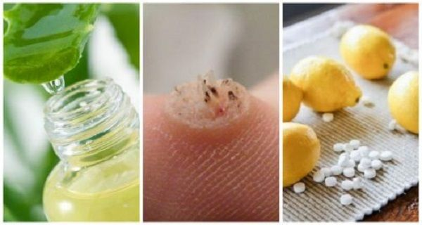 Warts are small protuberances that appear on your skin. They arecaused by thehumanpapillomavirus infection (HPV),which is actually a virus with a huge number of different sub-types. The presence o