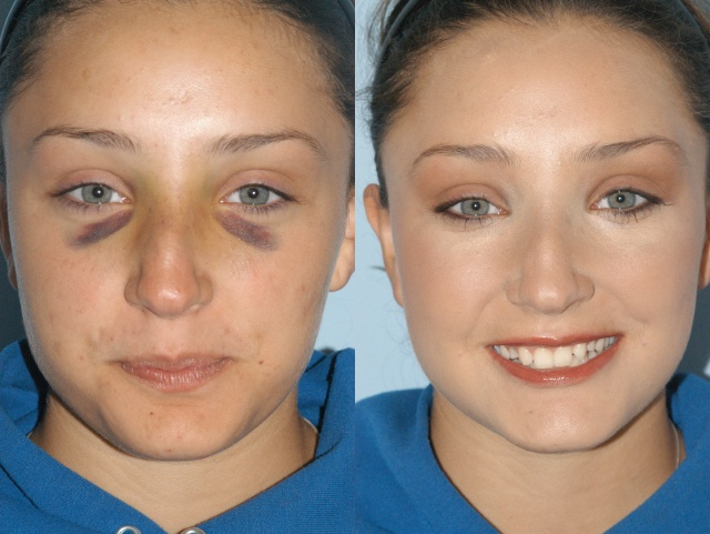 Jane Iredale Cover Up Kit Hides Bruising Well if it