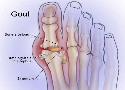 Gout Causing Foods - The 12 Most Common Gout Causing Foods.