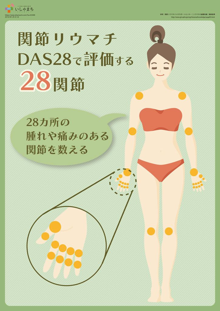 関節リウマチ DAS28で評価する28関節
