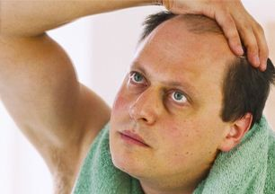 Best Hair Transplant Option for Men Over 30 With a Receding Hairline