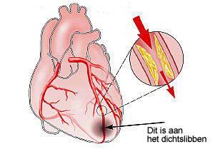 Hartinfarct. Kransslagader is dichtgeslibd waardoor een deel van het hart afsterft. Symptomen: benauwde/drukkende pijn op de borst. Oorzaak: dichtslibben van een slagader. Behandeling: dotter- en stentbehandeling.