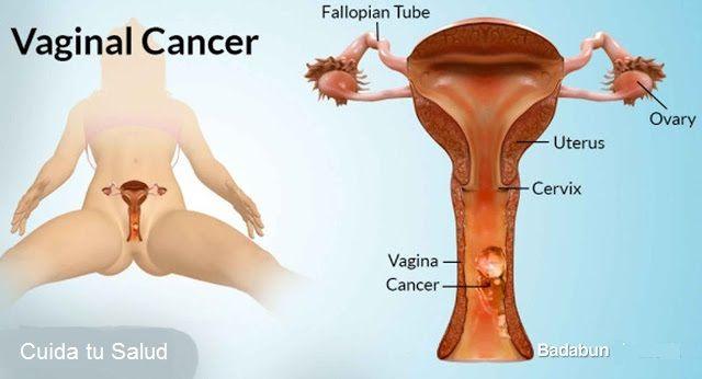 8 síntomas que pueden ayudarte a detectar el cáncer de ovario a tiempo | HSalud