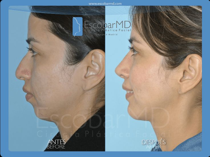Antes después rinoplastia mentoplastia bichectomía Bogotá Colombia www.escobarmd.com Before and after Rhinoplasty or Nose job, mentoplasty or chin surgery and cheeks surgery (buccal fat removal) or bichectomy in Bogota, Colombia http://www.escobarmd.com/en/mentoplasty-or-chin-surgery-in-colombia.html