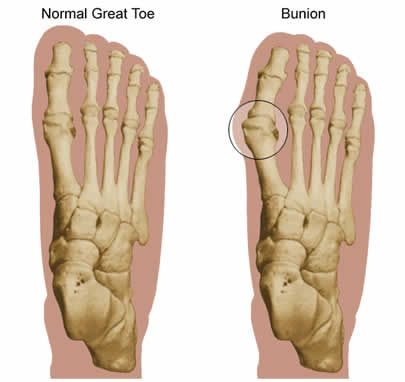 Guide for Treatment of Bunions