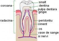 dintele