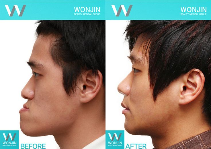 Two Jaw Surgery in Korea before and after photos #wonjin #beauty #wonjinbeauty #wonjinbeautymedicalgroup #plasticsurgery #twojaw #doublejaw
