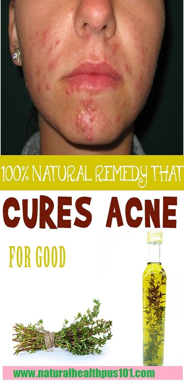 home remedies for acne overnight, home remedies for pimples for oily skin, homemade acne mask, home remedies for pimples and blackheads for oily skin, home remedies for acne scars, how to cure acne naturally in 3 days, best home remedy for acne overnight, home remedies for blackheads, #homemadefacemasksformen