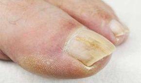 Vložte nohy do tejto zmesi na10 minút, je to úžasná metóda, ako sa môžete navždy zbaviť húb na nechtoch! Výsledky budú rýchlejšie, ako s akýmkoľvek liekom z lekárne | MegaZdravie.sk