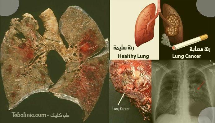 Pin On أمراض وعلاجات