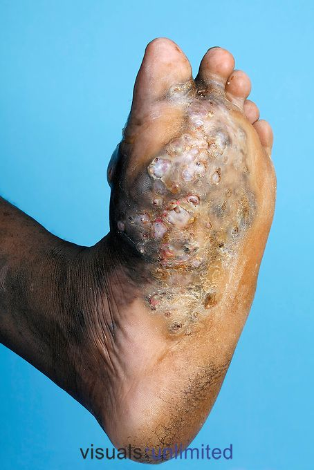 The sole of a foot belonging to a young male suffering from Mycetoma...Mycetoma is an uncommon disease found in the tropics. It is a chronic, localised infection of the skin and underlying tissues characterised by the formation of several abscesses (collections of pus) and granulomas (collections of epitheloid histiocyte cells produced in a