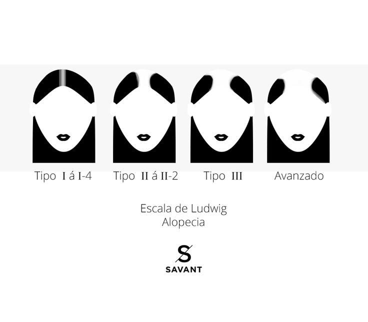 Alopecia en mujeres.