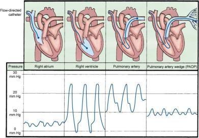 Hemodynamic Monitoring- Pulmonary Artery Pressures (PA)