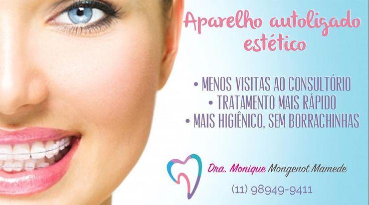 Aparelho Autoligado Estético!! O mais procurado hj por ser menos dolorido e resultados mais rápidos!! Saiba mais através do tel 11 98949-9411 #orthodontist #ortodontista #dentistry #orto #ortho #ortholove #ortodontia #ortoporamor #amoortodontia #dental #dentes #dentist #dentista #sorria #sorriso #sorrisolindo #dentesbrancos #aparelhoinvisivel #aparelhoautoligado #selfligating by dra.monique_dra.mary Our General Dentistry Page: http://www.lagunavistadental.com/services/general-dentistry…