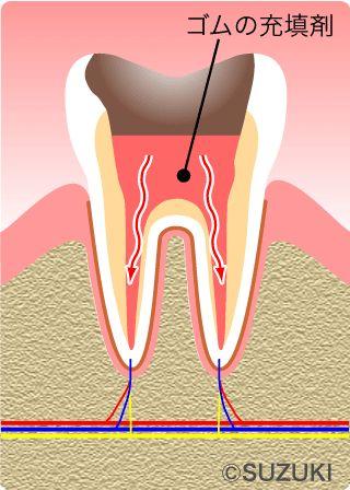 一般歯科・神経を抜く治療 «  東大阪/石切駅前・徒歩1分。鈴木歯科医院 歯を残す、神経を守る、長持ちするセラミック、お子様の矯正、確実なインプラント治療、目立たない保険の入れ歯。鈴木歯科に任せて下さい。