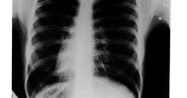 Factores de la exposición a las radiografías. Los factores de la exposición radiográfica determinan la visibilidad de las estructuras anatómicas en una radiografía. También afectan la dosis de radiación en el paciente. Aunque la mayoría de los sistemas de radiografías proporcionan la habilidad de manipular la cantidad de oscuridad o varios tonos de gris en una radiografía después de que haya ...