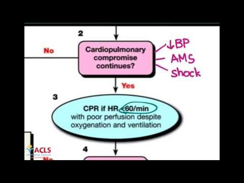 Pediatric Advanced Life Support (#PALS) whiteboard video lesson about Bradycardias by the #ACLS Certification Institute. Our PALS training series covers everything you need to know to pass your PALS course. Visit us online at http://www.aclscertification.com for more free material or subscribe to the #ACLSCertificationInstitute Youtube channel at http://www.youtube.com/aclsinstitute #BLS #nurse #doctor #emt #paramedic #premed