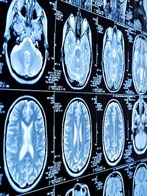 The brain tissue of alcoholics experiences a variety of changes compared to non-alcoholics, according to a new study at the University of Eastern Finland. And while all alcoholics' brains share some of the same characteristics, the researchers discovered...