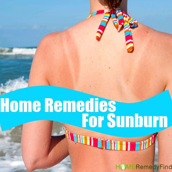 Simplest Home Remedies For Sunburn