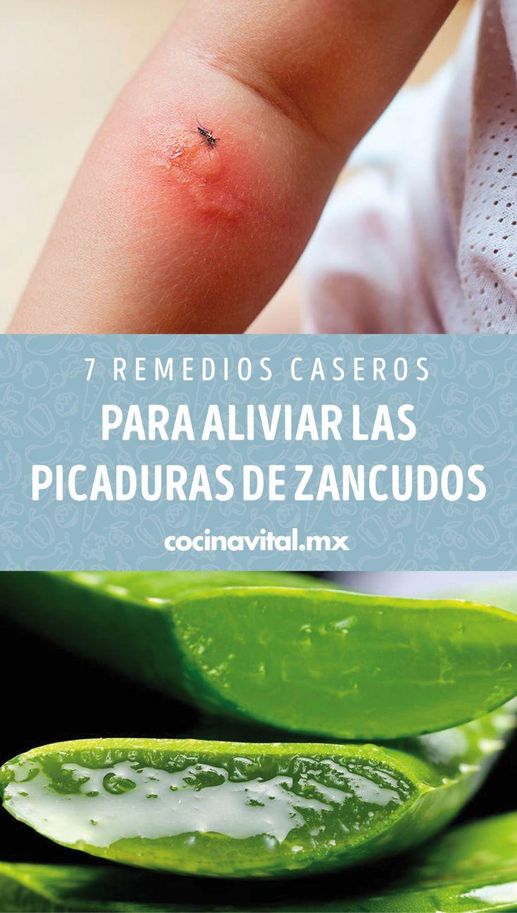 7 Remedios Caseros Para Aliviar Las Picaduras De Zancudos Cocina Vital Qué Cocinar Hoy Picaduras De Zancudos Remedios Para Mosquitos Picaduras