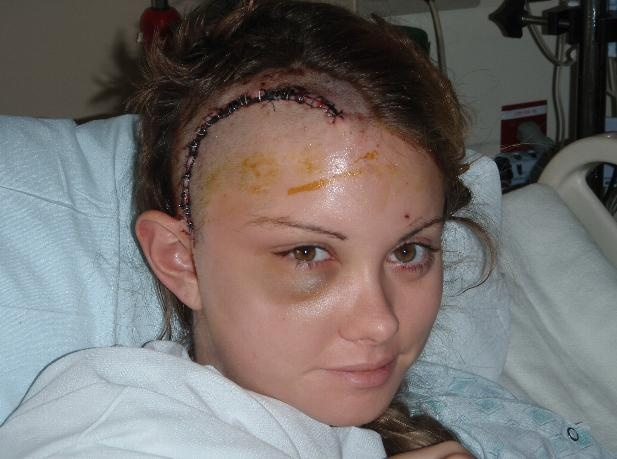 Brain Tumor Surgery Scars Wallpaper, Photos Brain Tumor Surgery Scars ...
