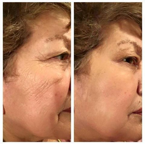 """Foto de Jeunesse Instantly """"Who doesn't want to look 10-20 years younger in 2 minutes? Instantly Ageless by Jeunesse Global just changed the anti-aging industry over night!  Jeunesse Instantly Ageless Results in just 2 minutes !!!  Buy 25 Jeunesse Vials at discount price at :   http://mumlolcom.jeunesseglobal.com/Products.aspx?p=INSTANTLY_AGELESS"""