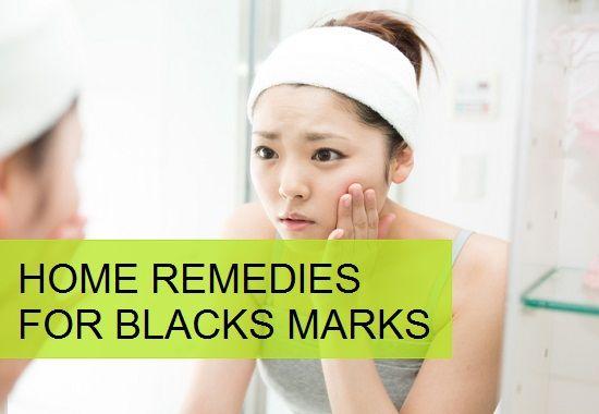 Homemade Beauty Tips for Black Marks on Face