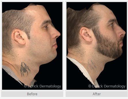 17 best images about tattoo removal before and after on for Laser tattoo removal madison wi