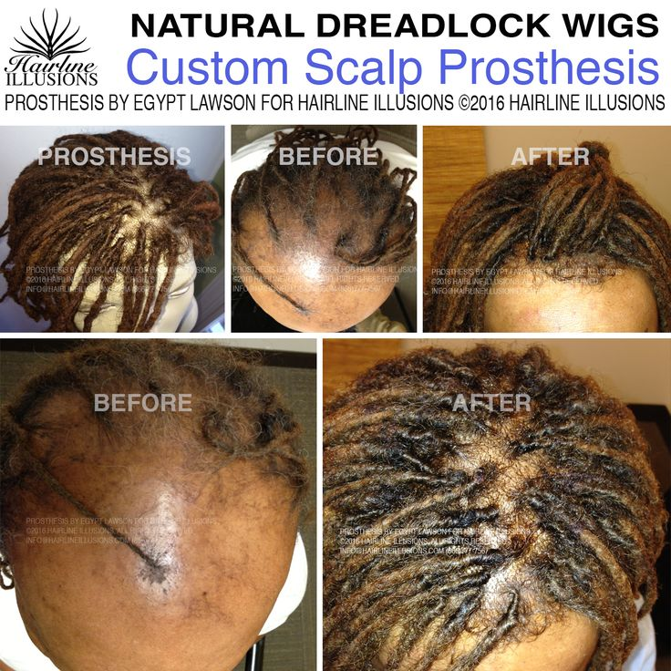 Egypt Lawson Hairline Illusions Natural Dreadlocks