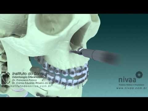Cirurgia Ortognática Bimaxilar - YouTube