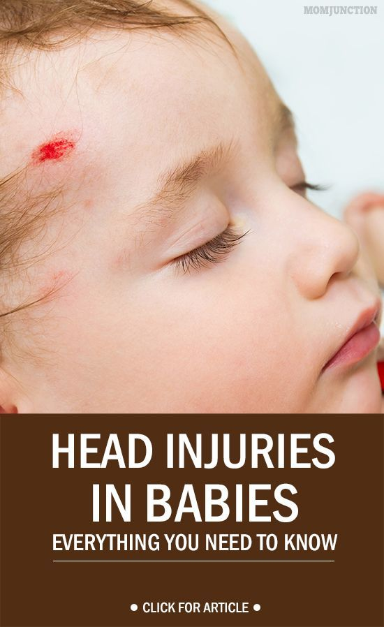 Head Injuries In Babies – Everything You Need To Know. Pin for future reference.