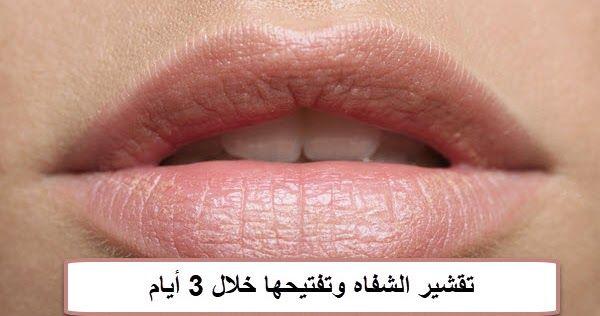 تفتيح الشفاه الغامقه تفتيح الشفاه الغامقه Dark Lips Lips Lightening