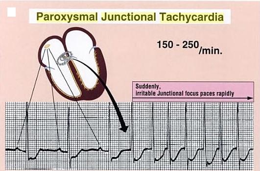 Paroxysmal Junctional Tachycardia: got it - non-life-threatening.