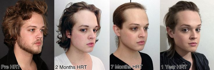 Mtf 1 Year Hrt Facial Changes In 2019  Trans Women -4144