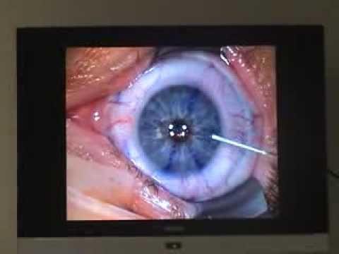 Chirurgie laser opération de la myopie par le Dr Marc CHEMLA au Centre Vision Laser Paris Ouest Tel: 01 47 85 73 73. contact@lasik-paris.net http://www.myopi...