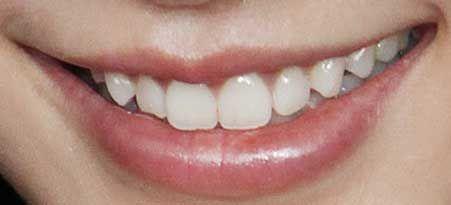 アンジェラベイビー 前歯の写真